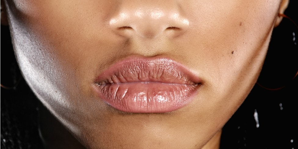Factors that Lead to Chapped Lips
