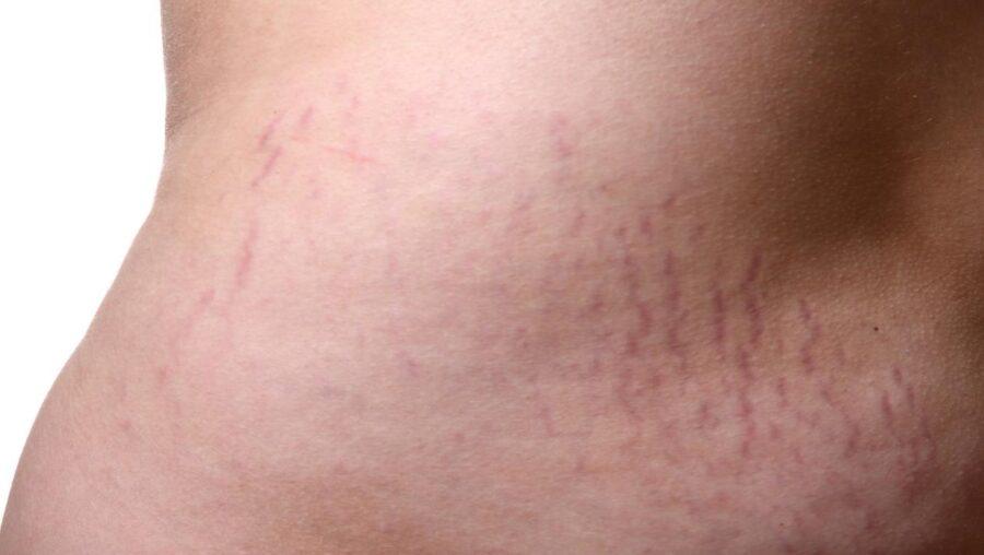 كيفية إزالة الخطوط الحمراء من الجسم